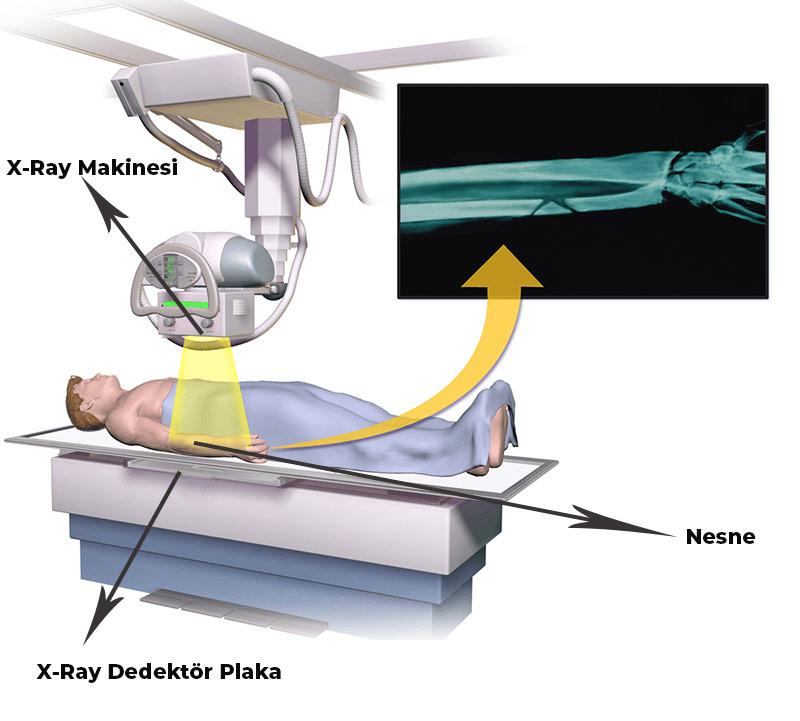 X-Ray Cihazları Nedir? X-Ray Çalışma Mantığı Nedir? X-Ray'den Neler Geçer?